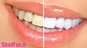 روش هایی برای سفید کردن دندان ها در منزل,دانستنی های پزشکی, راه سفید کردن دندان, روش های سفید کردن دندان, سفید کردن دندان, سیاهی دندان